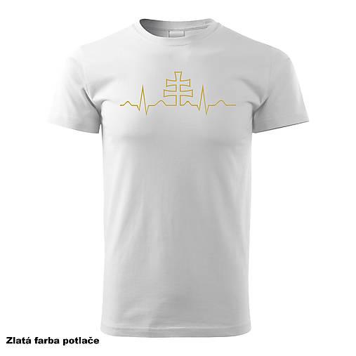 EKG Slovakia